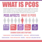 Polycystic Ovary Syndrome PCOS: Types, Symptoms, Causes, and Treatment